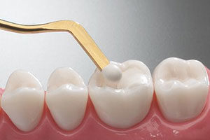 dental implants los angeles